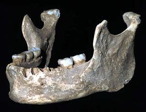CráneoOase003