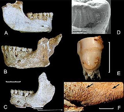 El Sidrón Asturias piezas dentales