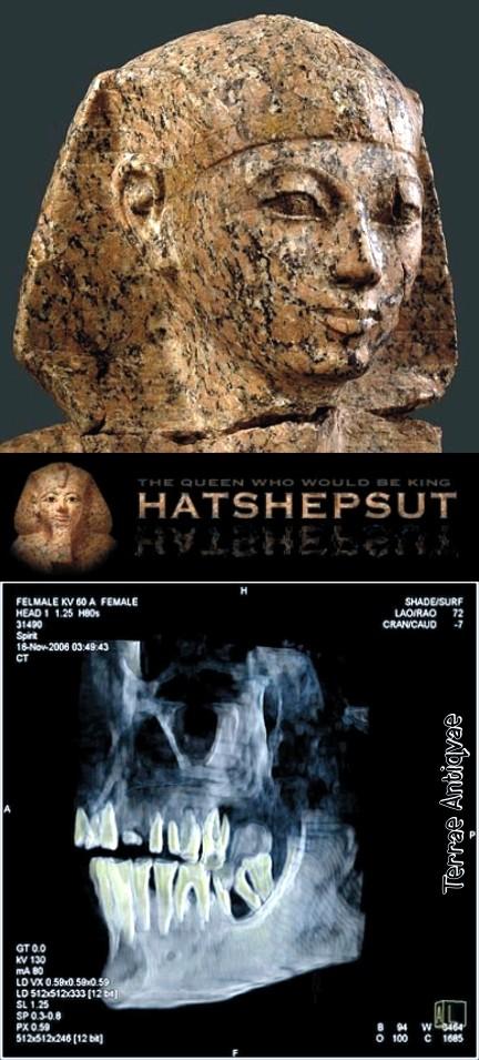 Hatshepsut Xray XVIII din