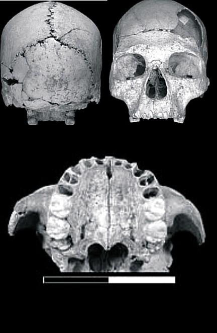 CráneoOase004